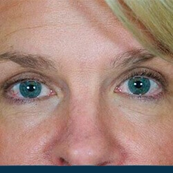 Preview image of our blepharoplasty and droopy eyelid surgery photo album provided by Dr. Kulbersh