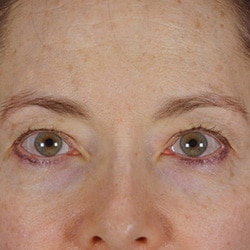 Preview image of our browlift and forehead lift surgical treatments performed at our Charlotte medical clinic