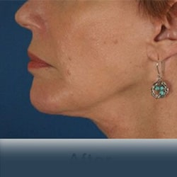 Preview image of our chin implants and chin augmentation gallery provided by the cosmetic surgery experts in Charlotte.