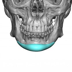 Preview image of our custom facial implant gallery provided by Charlotte, NC facial plastic surgeons