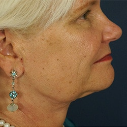 Preview image for facelift and necklift section of our Charlotte, NC surgical clinic photo gallery.