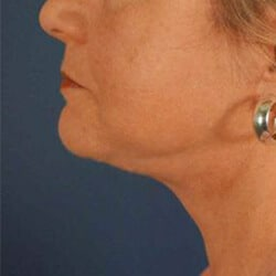 Preview image of our facial fat grafting surgical treatments provided by our Charlotte, NC surgical center.