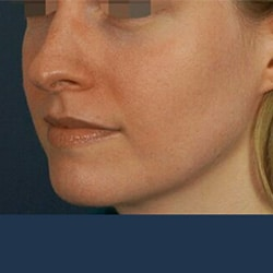 Preview image for our facial injectable images for our Charlotte surgery center.