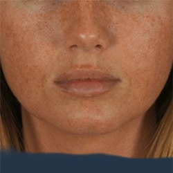 Preview image for lip augmentation and lip filler treatment image gallery provided by our cosmetic surgery clinic in Charlotte.