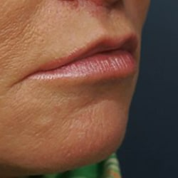 Preview image of our lip lifts image gallery provided by our surgery clinic in Charlotte.