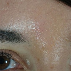 Preview image of our mole removal treatment gallery as provided by our skin care specialists in Charlotte, NC.