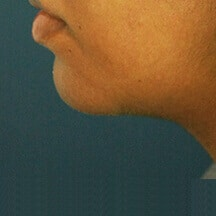 Preview image of our neck liposuction photo gallery performed by our Charlotte cosmetic surgery specialists.