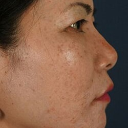 Preview image of our non-surgical rhinoplasty and liquid rhinoplasty photo gallery.