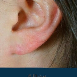 Preview image of our otoplasty and earlobe surgical repair image album performed by Charlotte facial plastic surgeons.