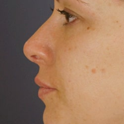 Preview image of our rhinoplasty and nose job images performed by our Charlotte facial plastic surgeons.