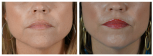 Before After Filler To Jawline5 300x111 Before & After