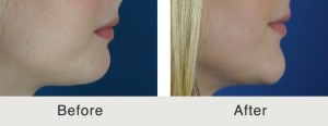 ChinImplant Rhinoplasty5 large 300x116 Chin Implants