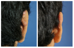 Excision Keyloid Ear 2 Before & After