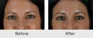 Upper Blepharoplasty surgery Before and After