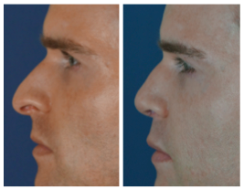 before after rhinoplasty and fillers1 Rhinoplasty