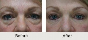Remove Eye Bags Surgery Charlotte