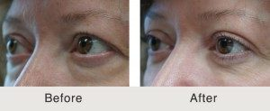blepharoplasty surgery cost north carolina