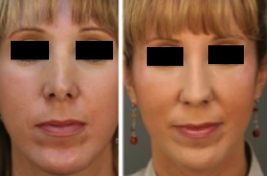 revision rhinoplasty before after 300x1981 Revision Rhinoplasty