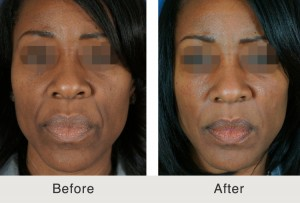 AfricanAmerican Cheek SmileLine Fillers1 large 300x203 Facial Fillers