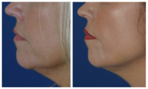 Before After Filler To Jawline1 300x180 Facial Fillers