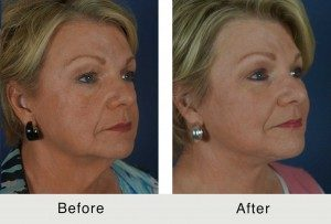 Facial Wrinkle Removal Before & After