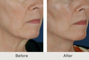 Facial Jowl Reduction Before & After