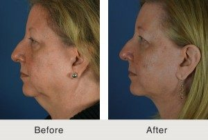 Necklift Skin Tightening Surgery Charlotte