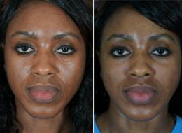 facial filler before after1 Facial Fillers