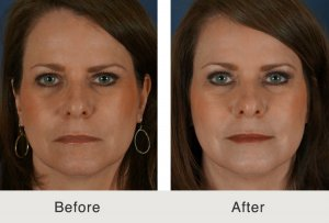 dermal filler treatment charlotte