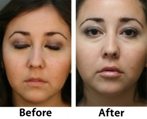 Lip Augmentation 1 300x243 Before & After