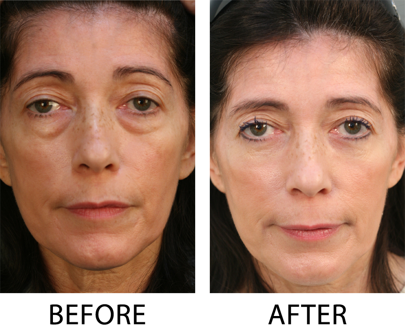Eyelid Surgery Blepharoplasty San Diego CA |Lower Blepharoplasty Recovery Photos