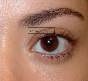 Charlotte Beautiful Eye 300x276 How Does a Charlotte Facial Cosmetic Surgeon Make the Eyes Look Better After an Upper Blepharoplasty (Eyelift)
