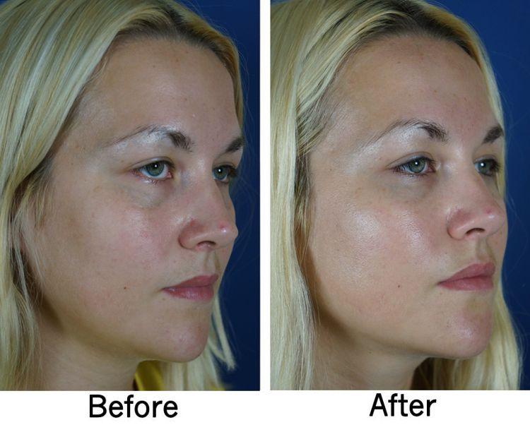 Facial Filler 1 Carolina Facial Plastic Surgery