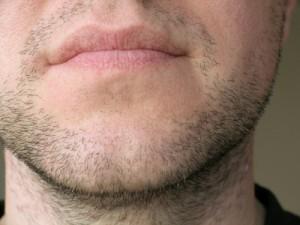 Beard Chin Augmentation