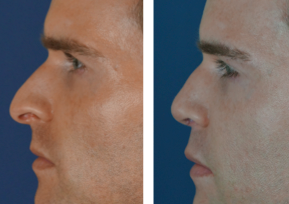 Before & After Rhinoplasty With Fillers In Charlotte
