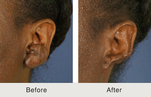 Excision of Keloid Scar On Ear In Charlotte