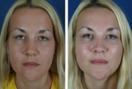 girl facial filler before after1 Getting Ahead Of The Aging Process