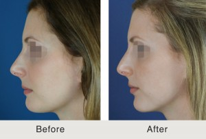 Rhinoplasty With Chin Implant in Charlotte