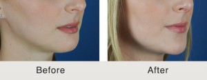Chin Implant in Charlotte
