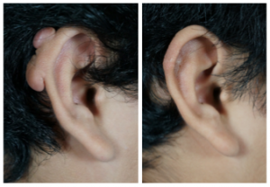 Excision Keloid Ear