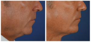 Liquid necklift before and after in Charlotte, NC