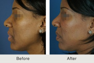 Facial fillers to cheeks to correct smile lines