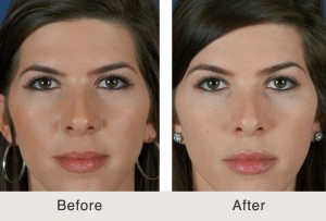 Before & After Non-Surgical Browlift