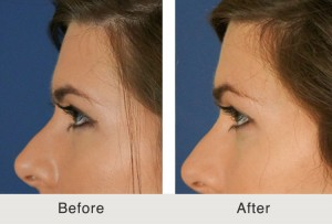 Before and after image of rhinoplasty non-surgical brow lift performed on a Charlotte, NC patient