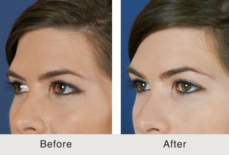 Before & After Non-Surgical Browlift   Carolina Facial ...