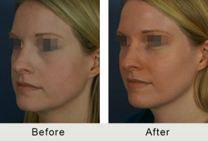 Dermal filler before and after results in Charlotte, NC