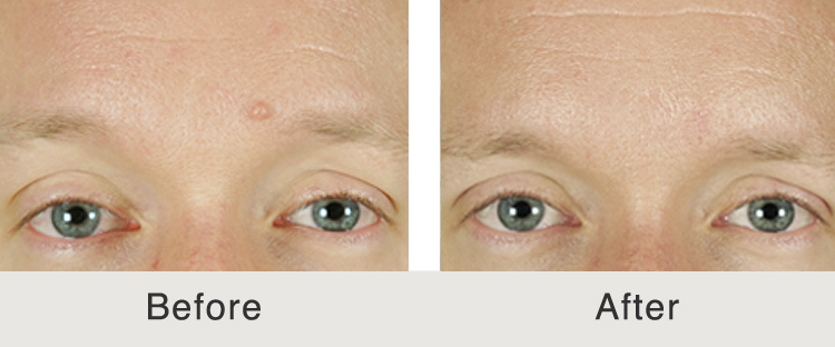 Before & After: Mole Removal   Carolina Facial Plastics