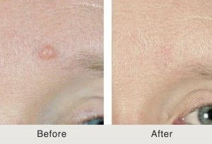 Mole Removal With Dr. Kulbersh in Charlotte