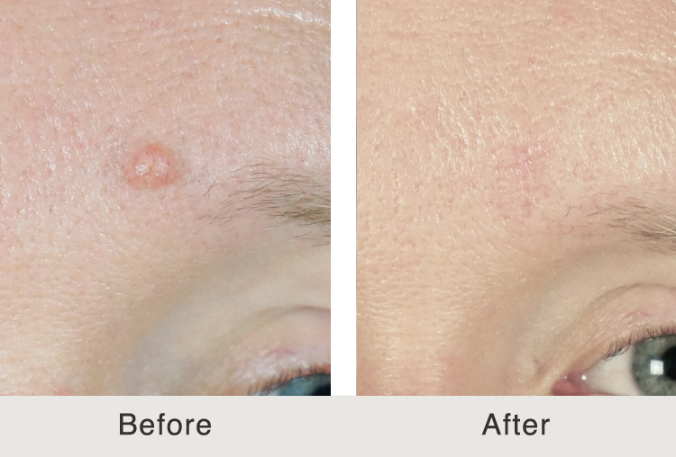 Remarkable, rather Facial mole removal cost with you