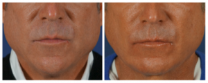 Liquid necklift results in charlotte, nc